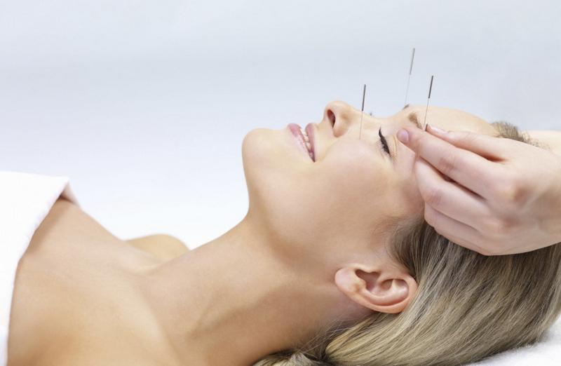 L'acupuncture au service de votre bien-être